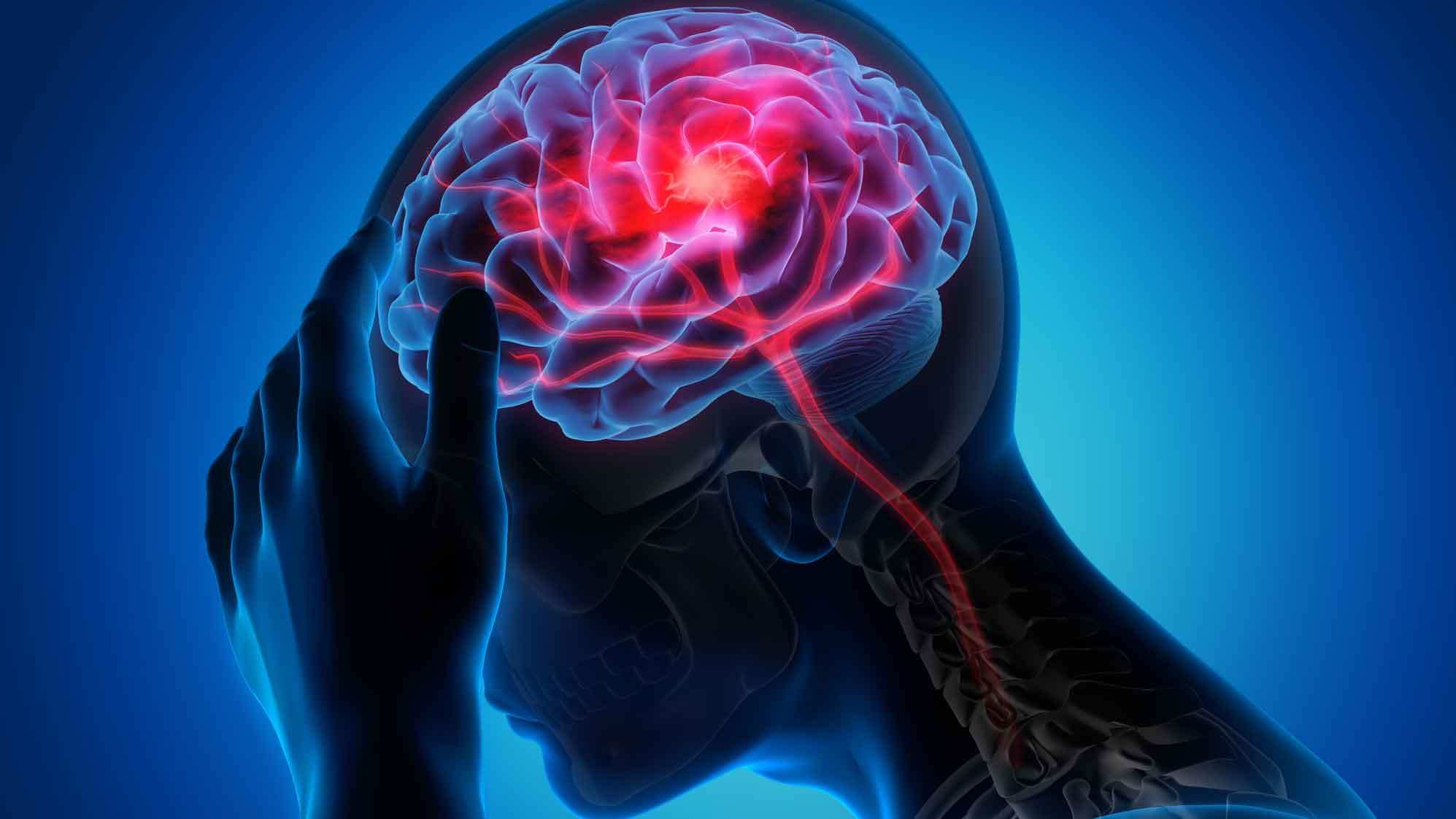 Was steckt eigentlich hinter Epilepsie?