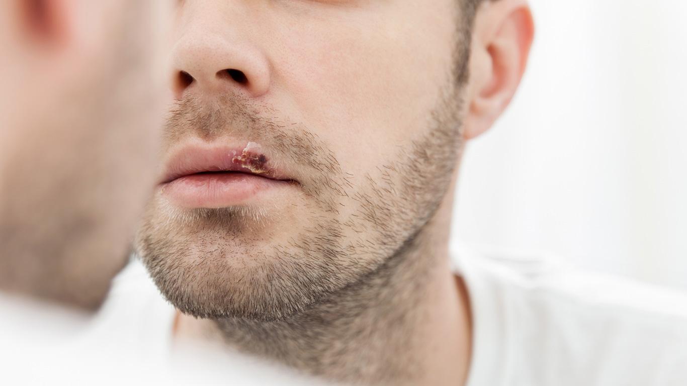 Viren zerstören Hautzellen