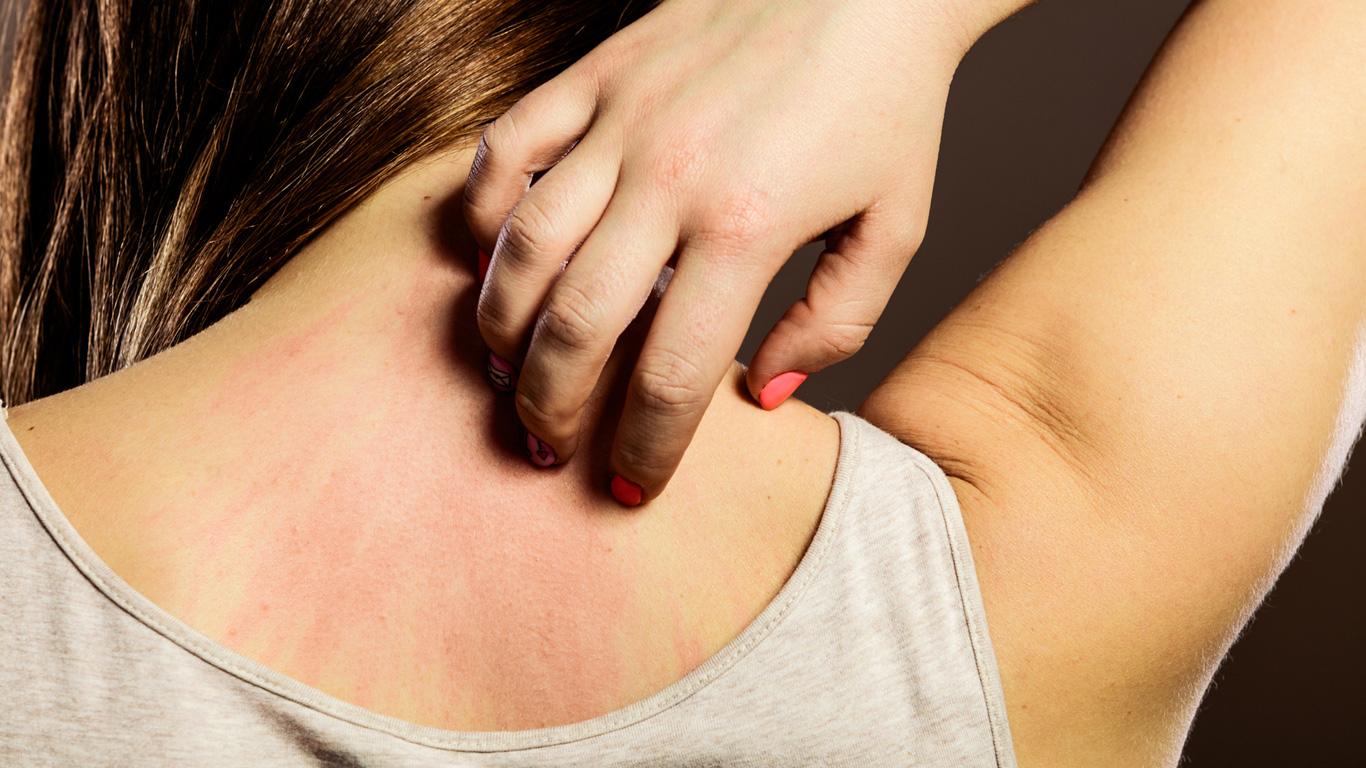 Hautpilz, Hepatitis, Krebs: Juckreiz kann viele Ursachen haben
