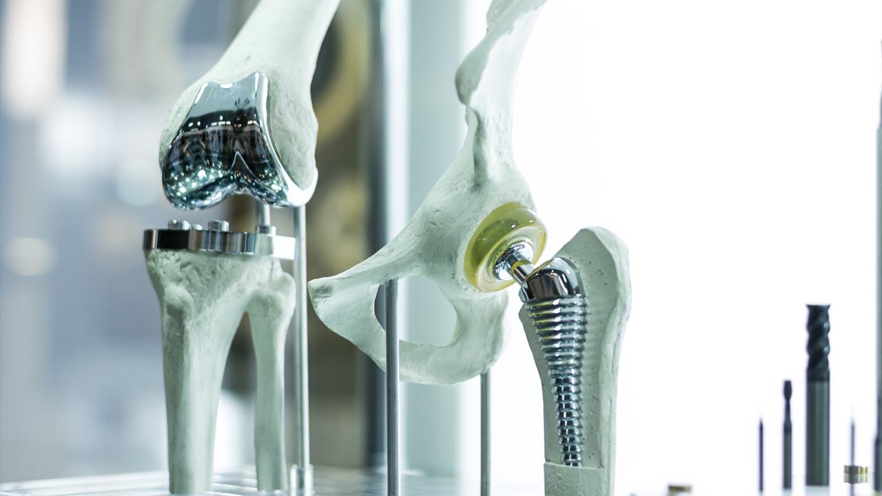 Schon kleine Verletzung sind bei künstlichen Gelenken gefährlich