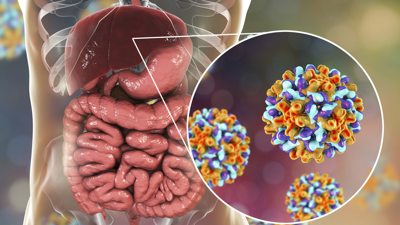 Auch schon in Portugal droht Hepatitis: Wie man sich schützen kann