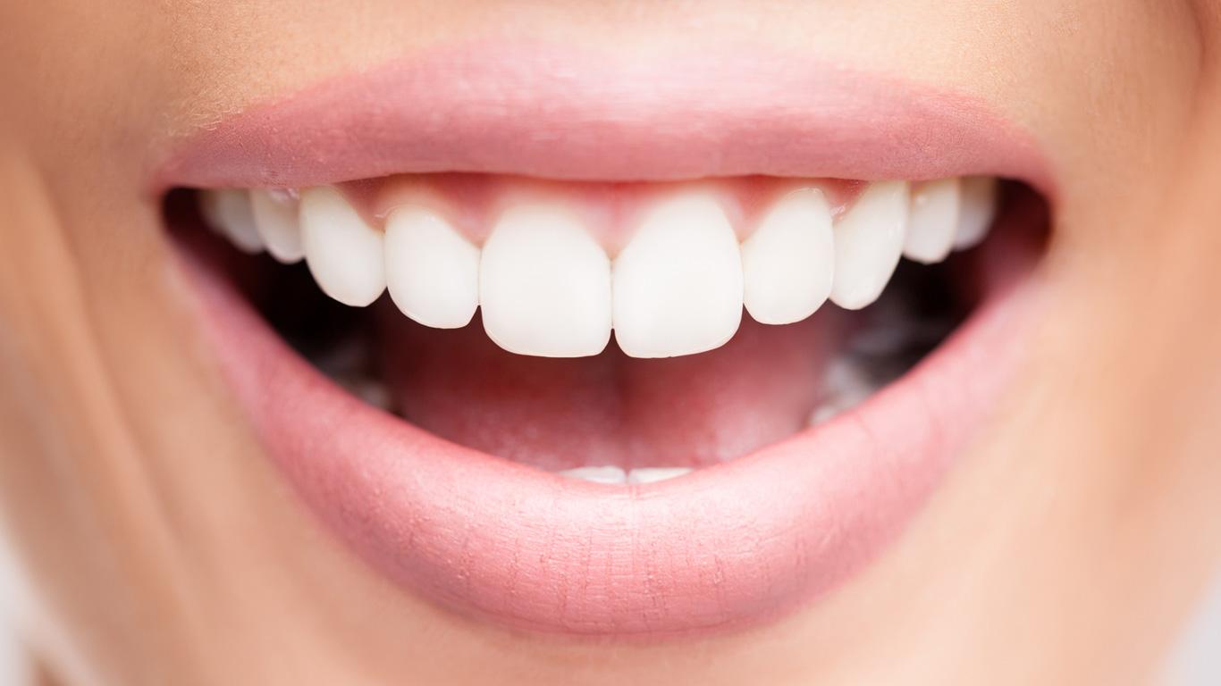 Zahnfleischentzündung: Kann Parodontitis zum Tod führen?