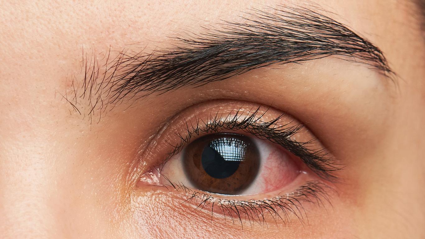 Was hilft gegen trockene Augen?